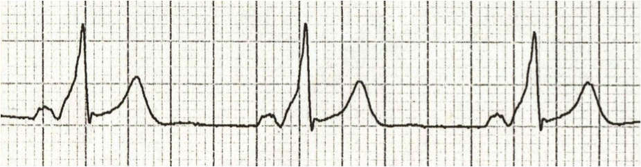 Delta wave in WPW syndrome