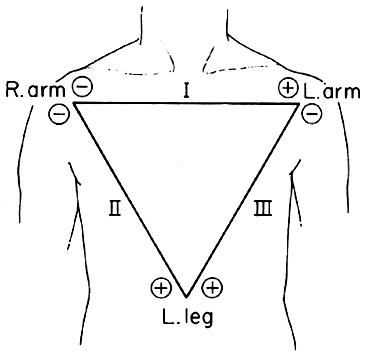 A very short guide to ECG interpretation | Blog of Dr. Agnibho