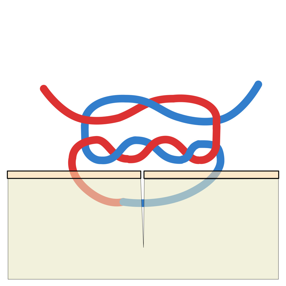 Diagram of a surgeon's knot